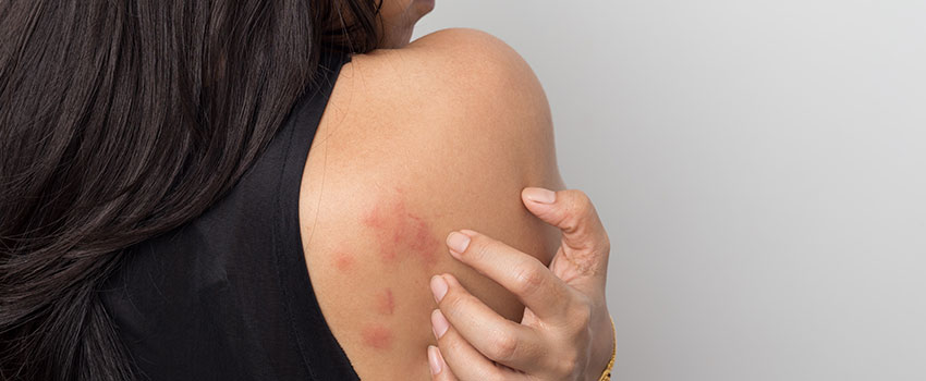 What's the Difference Between a Poison Ivy Rash and a Poison Oak Rash?
